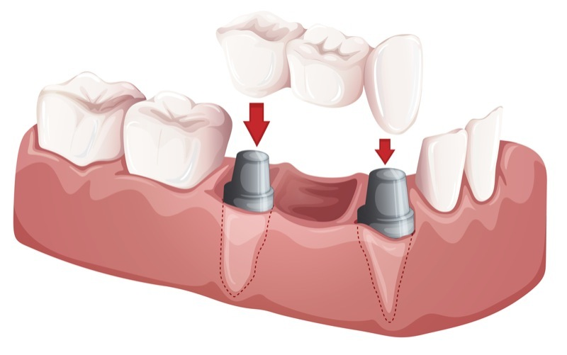 Dental bridges in Chicago by Delaware Dental