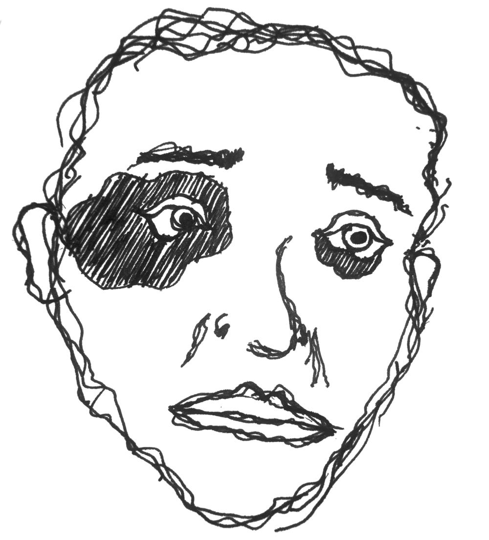 self portrait w/ a black eye