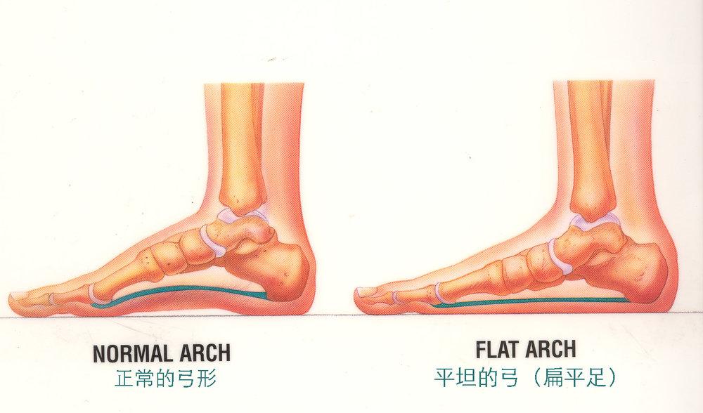 足部月形比較:正常足部與扁平足