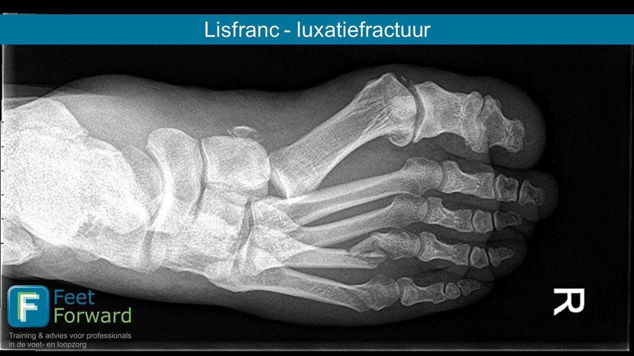 Tratamentul de luxație articulară Lysfranc