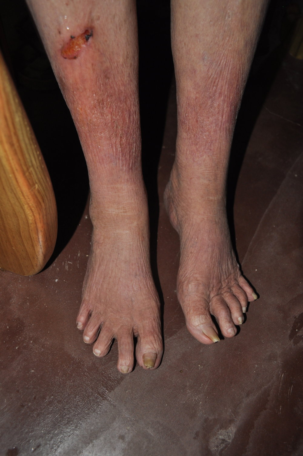 her feet as of right now. Further down you can find a comparison over the last month.