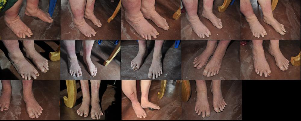 feet (19.9.18 - 16.10.18)