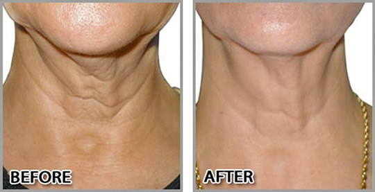 Neck Rejuvenation with PDO Threads