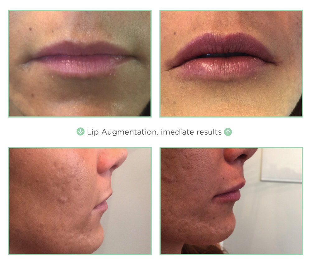 Lip Augmentation with PDO Threads