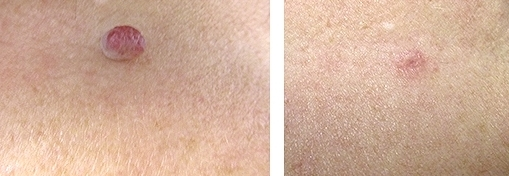 Skin Tag Removal Results