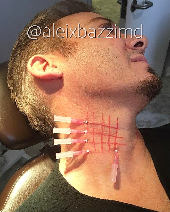 Neck Skin Rejuvenation with PDO