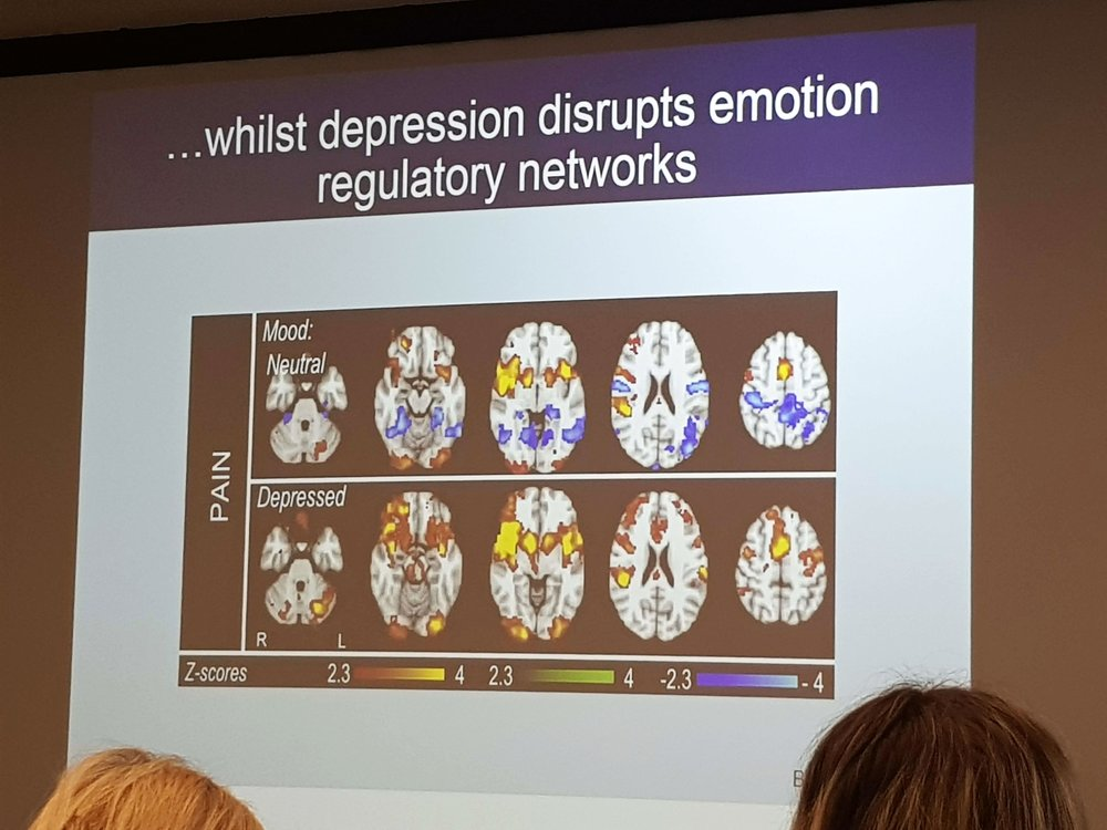This slide show brain scans in the same person, in response to the same degrees of pain but before and after a depressive state has been induced