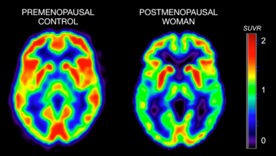 The PET scan to the left shows brain activity (e.g., metabolism) in a premenopausal woman; the scan to the right shows brain activity in a postmenopausal woman. The color scale reflects brain activity, with brighter colors indicating more activity, and darker colors indicating lower activity. The scan to the right (menopause) looks 'greener' and overall darker, which means that the woman's brain has substantially lower brain activity (more than 30 percent less) than the one to the left (no signs of menopause). Our published studies are     here     [Mosconi et al Neurology 2017; PloS One 2017].