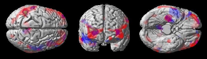 Statistical parametric maps showing brain regions with progressive reductions in brain glucose metabolism in cognitively normal adults with a maternal history of Alzheimer's as compared to those with a paternal history (purple) and to those with no family history (red). Progressively reduced metabolic activity in these same brain regions is indicative of increased risk of Alzheimer's. Our published studies are     here    .