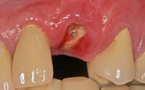 1. Eye tooth broken off below gum line: