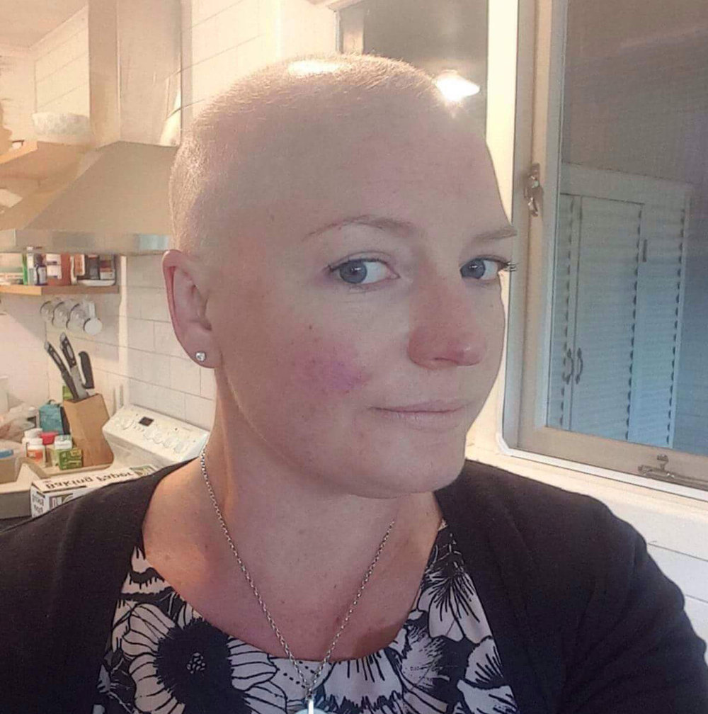 Bald and overweight after 6 months of chemotherapy.jpg