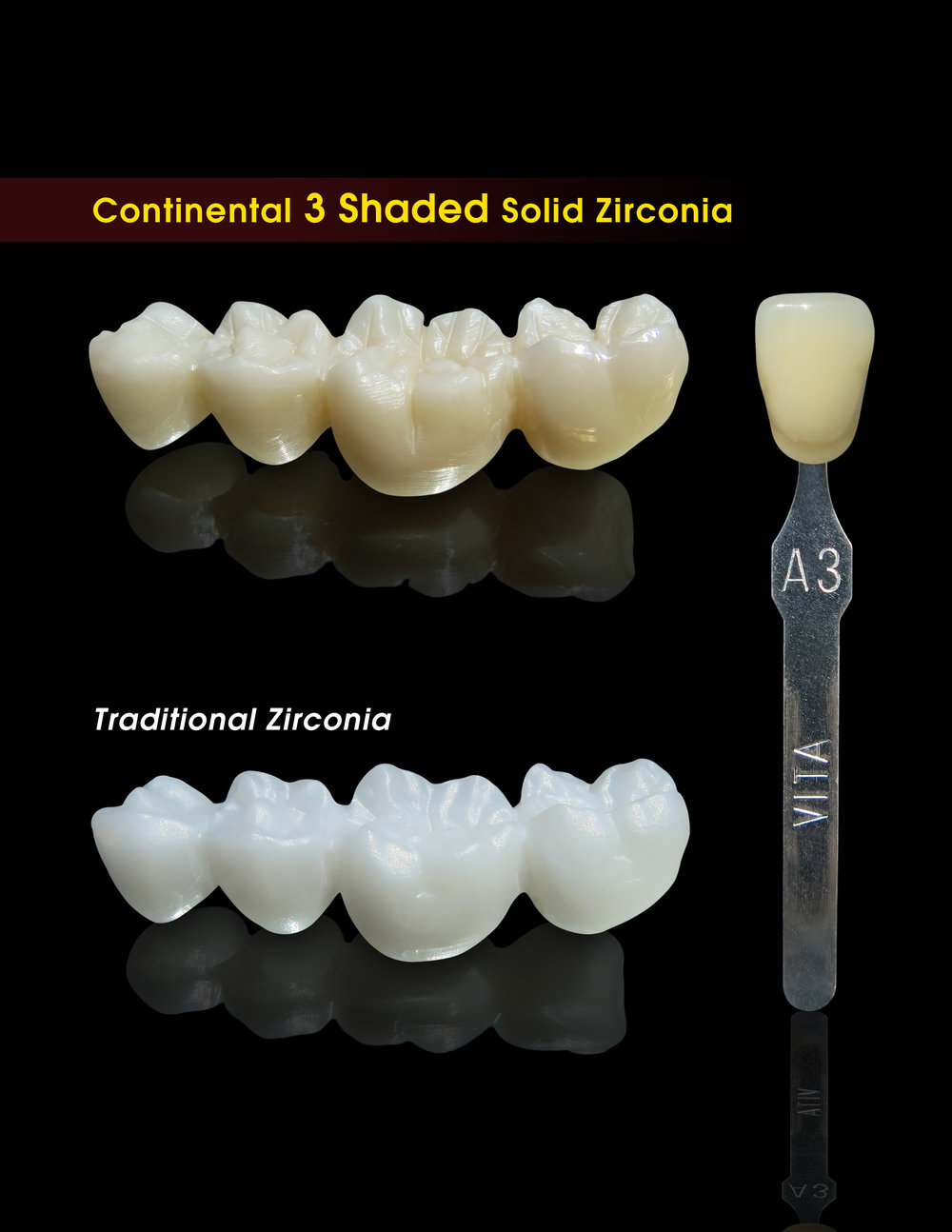 Pictured above: LuxerTM (top) vs. Traditional Zirconia Restoration (bottom). Note: These restorations have not been  retouched, stained,polished, or dyed.