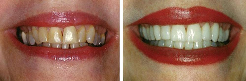 gum disease central Texas, gum disease northwest hills, gum disease