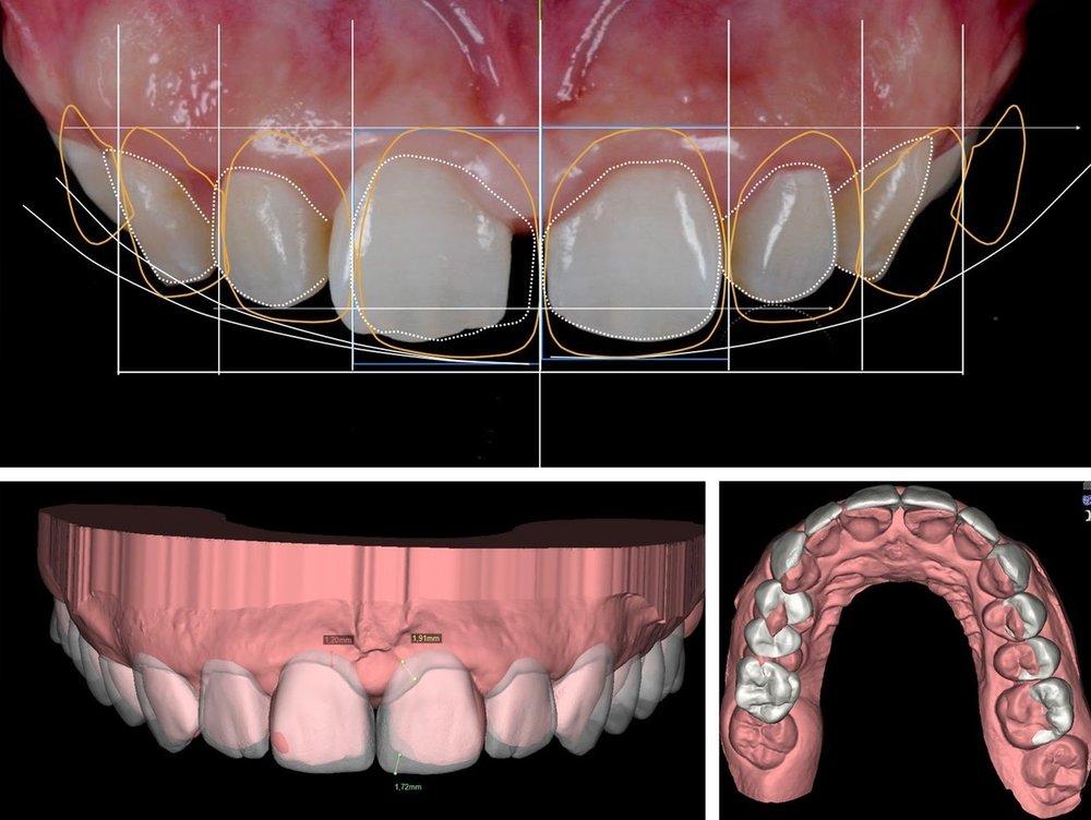 Digital Smile Design with Katz Dentistry