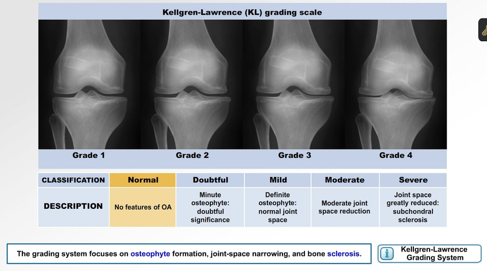 Knee Degeneration photo.jpeg