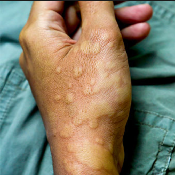ALLERGIC CONTACT DERMATITIS ANGIODEMA HANDS FEET AND FACE.png
