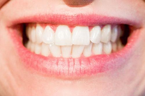 tandartsbehandeling.jpg
