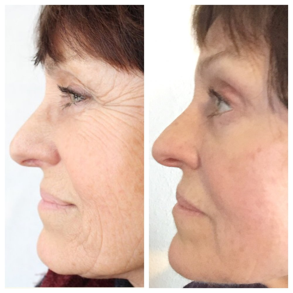 70-year old skin rejuvenation patient