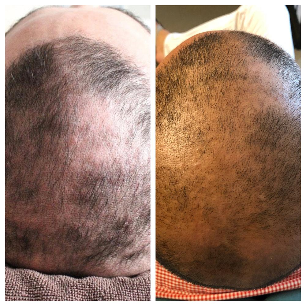 42-year old hair restoration patient