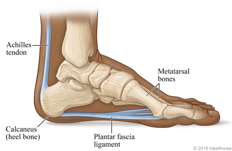 Run Away from Plantar Fasciitis — TruMotion Therapy