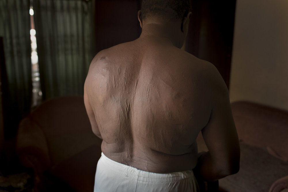 Cisarua, West Java, Indonesia. A Sudanese asylum seeker shows scars from torture at the hands of Sudanese authorities.