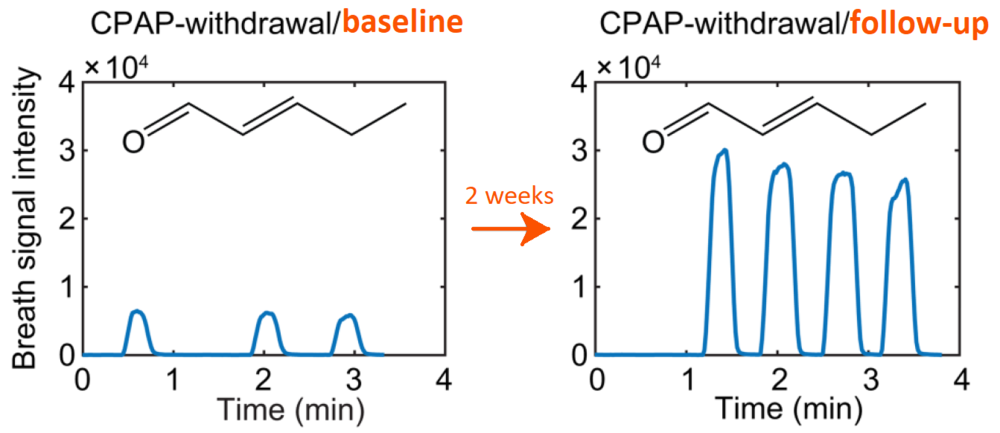 Real-time breath analysis showing time traces of the signal intensity of one exemplary breath metabolite (pentenal) in a subject from the CPAP-withdrawal group at baseline and at follow-up two weeks later.