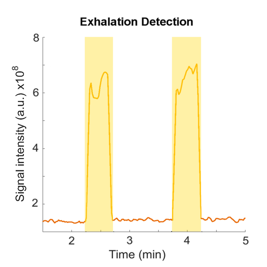 Exhalation detection.png