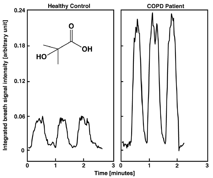 Identification of COPD via secondary electrospray ionization high resolution mass spectrometry.png
