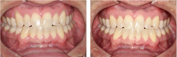 "This 41 year old male from Pleasant Grove, Utah presents to our office with gum recession on his upper canines. He objects to how his gum recession has impacted his smile and normally outgoing personality. He is always aware of his recession in social and professional settings. His main treatment objective was 100% root coverage of his ""unsightly"" roots."