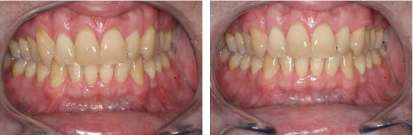 This 53 year old male presents with exposed, sensitive root surfaces on his upper canines. He reports that he can no longer eat or drink anything remotely cold as they cause him too much pain. Although he is concerned with his dental esthetics, his main objective is to eliminate the hypersensitivity to cold, and enjoy some of the simple things in life, like a glass of milk for example. The results seen here were taken two months after eliminating his recession with Connective Tissue grafting.