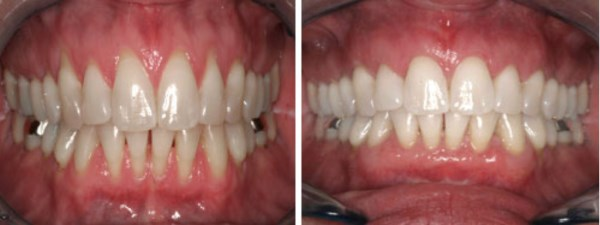 "This 42 year-old female from South Jordan, Utah presents with the complaint of ""sensitive"" roots and ""spaces"" opening up between her teeth.  Furthermore, she is concerned about the longevity of her teeth.  The results of her grafting should provide her with improved comfort and years of tooth preservation."