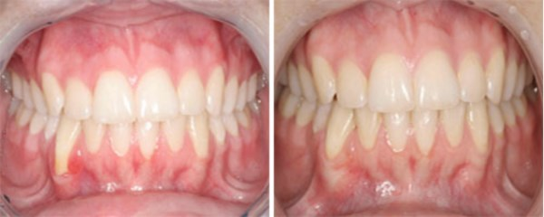 This Provo, Utah patient has advanced gum recession on her lower right canine.  The tooth is tender to brush and hurts when eating.  The results with Connective Tissue Grafting are AMAZING!