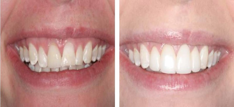 "This 27 year old School Teacher wants a new smile!  She presents with several challenges.  She has chipped teeth, exposed tooth roots, worn teeth etc.  However, by doing what is known as ""esthetic crown lengthening""  we were able to provide her dentist with a ""level table"" to place her veneers on."