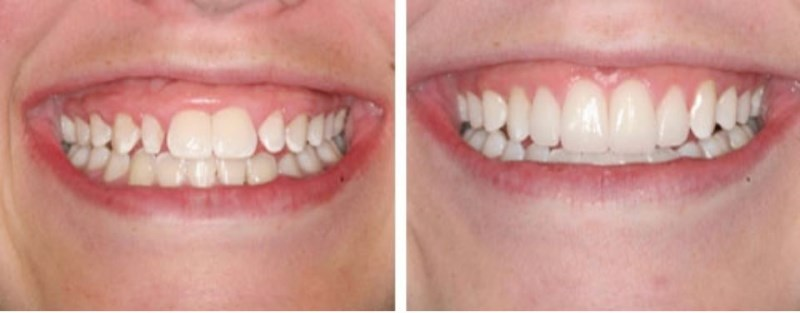 "This 15 year-old Pleasant Grove, Utah patient presents with a ""gummy smile"". She would really like to show more tooth length and less gingival tissue when she smiles. A relatively common procedure called 'Crown Lengthening' was performed to eliminate the excessive gum tissue and enhance the hidden beauty of her existing teeth and smile!"
