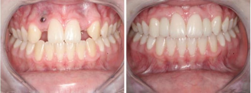 This 20 year-old female from Mapleton, Utah had two dental implants placed by someone who lacked the proper implant training and experience, as shown by the left implant protruding out of the gum tissue. We removed the ill-placed implant and repaired the hole in the gum tissue before a replacement implant could be inserted. This case demonstrates the need for a dental surgeon with proper training and experience.  Trust your mouth to a Specialist!
