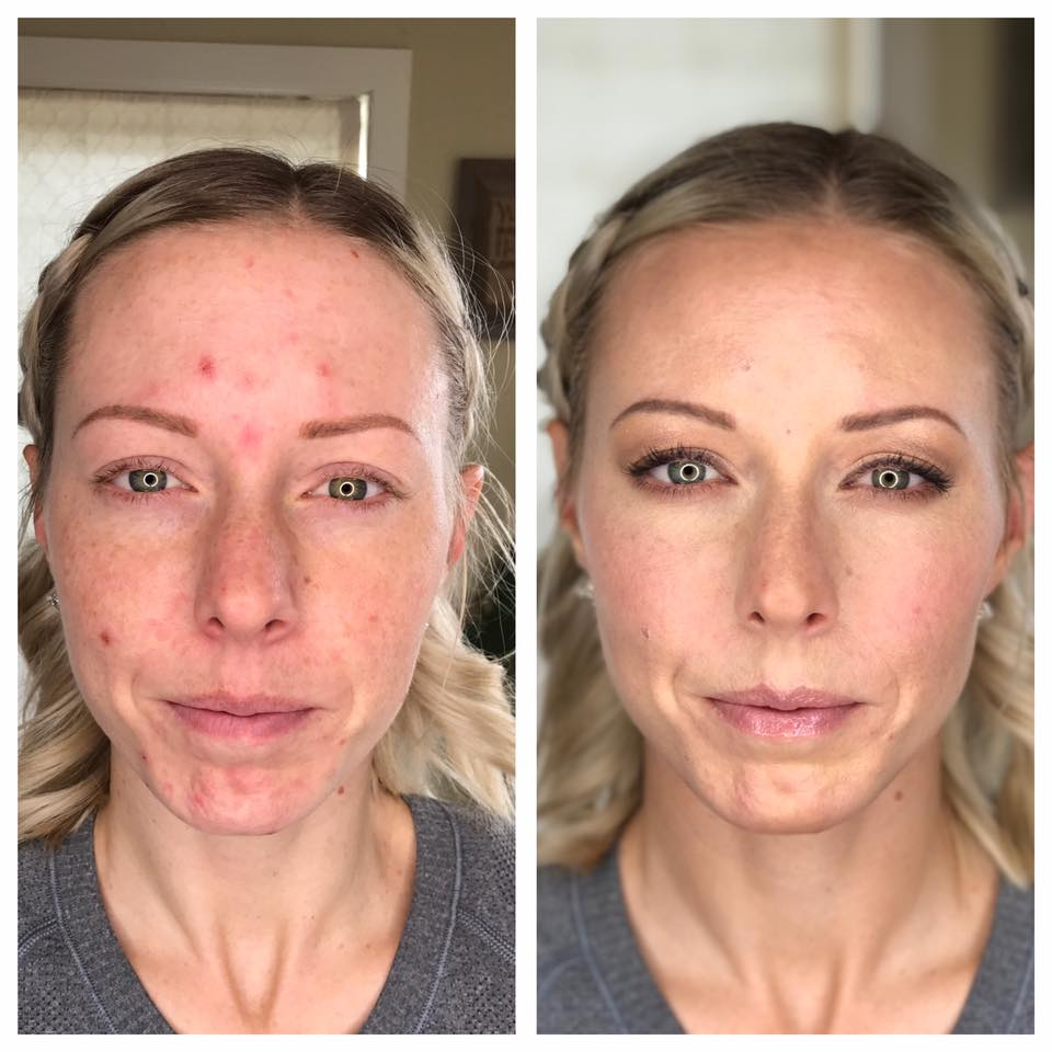 Maskcara-BEFORE-AFTER-A.jpg