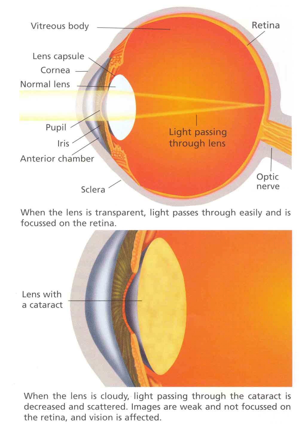 cataract_large.jpg