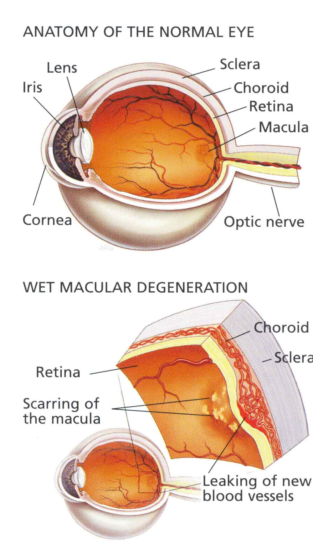 macular_degeneration_large.jpg