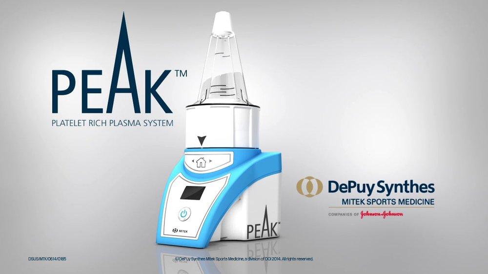 Peak System.jpg