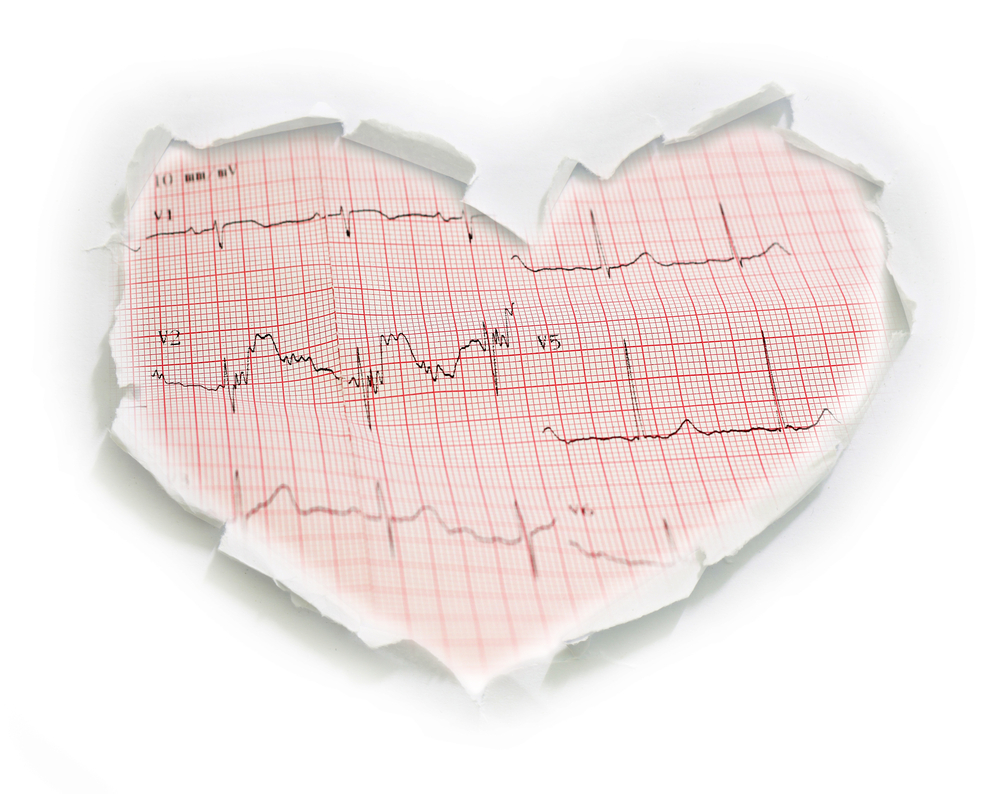 ECG Management - ECG Management è un'efficace sistema di refertazione che si presenta come un'unica interfaccia all'interno del sistema completo MEDarchiver Cardiology, in grado di archiviare, analizzare e refertare un ECG da ogni parte dell'ospedale e ovunque al di fuori di esso, attraverso un veloce accesso web.ECG Management permette di eliminare la carta e ottimizzare la gestione del flusso operativo in tutte le fasi dell'attività clinica.La soluzione per la gestione degli ECG della piattaforma MEDarchiver Cardiology è un vero e proprio sistema informativo che garantisce l'interoperabilità con le apparecchiature e con gli altri attori del sistema informativo ospedaliero.Il primo e unico ECG Management capace di offrire una soluzione per l'archiviazione basata su un PACS cardiologico, integrata con un'interfaccia di comunicazione compatibile con tutti i protocolli, conforme a tutte le normative vigenti ed espandibile senza limiti con tutte le soluzioni del sistema MEDarchiver Cardiology.Visita cardiology.medarchiver.com/ecgmanagement