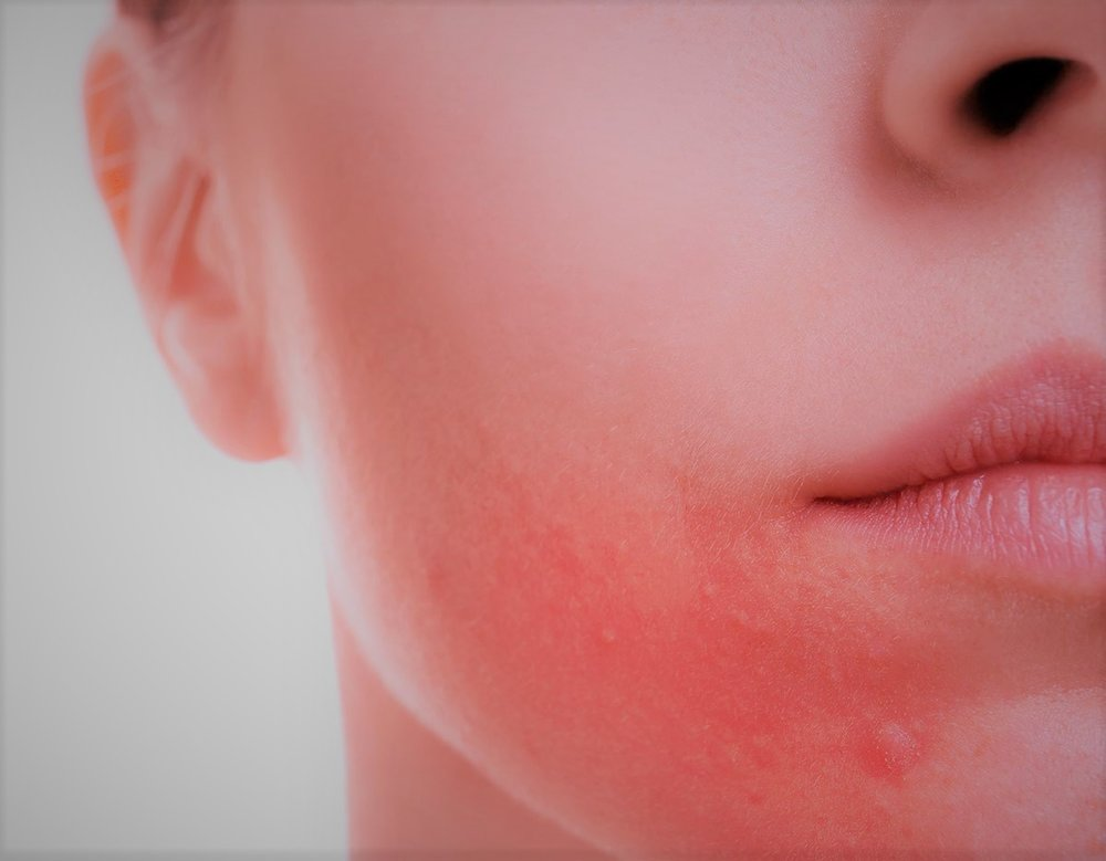 rosacea-facial-redness.jpg