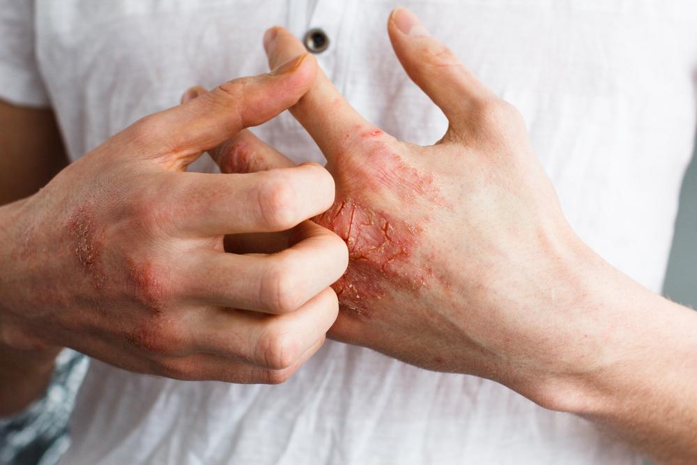 scratch-eczema.jpg