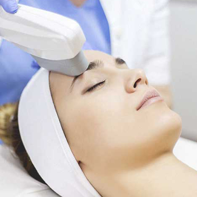 IPL Treatment -
