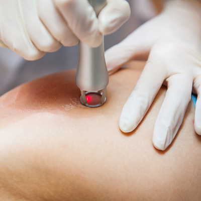 V-Beam Laser Therapy -