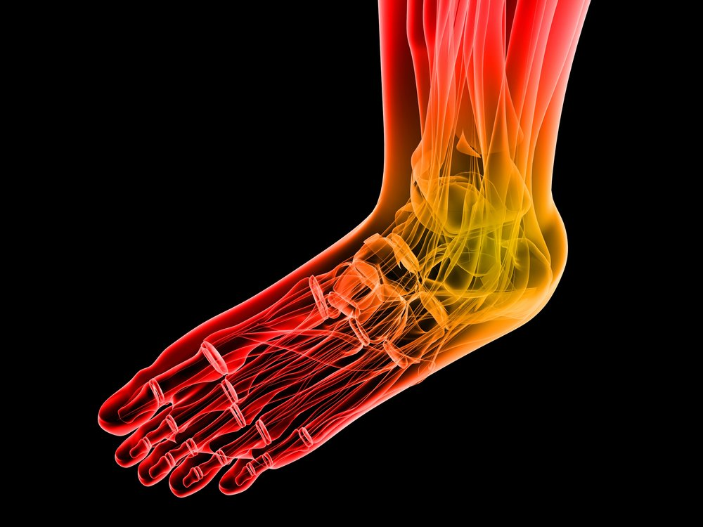 peripheral neurpathy, burning feet, numb feet