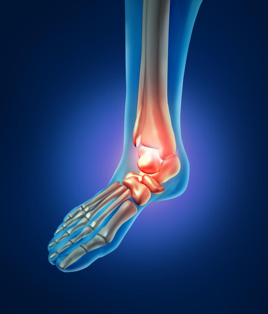 broken ankle, foot fracture podiatrist pueblo co