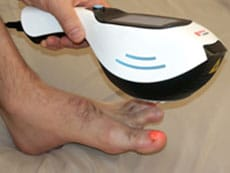 Laser Therapy For Toenail Fungus