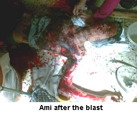Ami Bomb Blast Images Israel Hate Crime