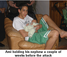 Ami Israel Bomb Survivor Hate Crime Victim