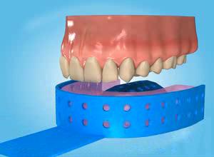 movie_teeth_whitening1.jpg